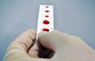 Euroimmun lança teste com papel filtro