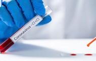 No combate à pandemia do COVID-19 Novartis junta-se a consórcio da Fundação Bill e Melinda Gates