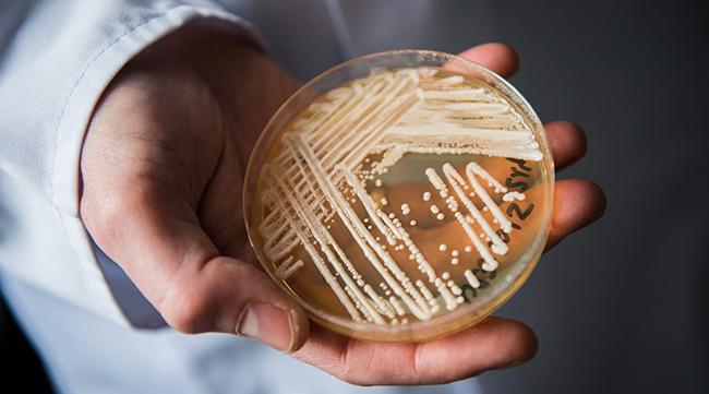 Primeiro caso de Candida auris no Brasil é identificado